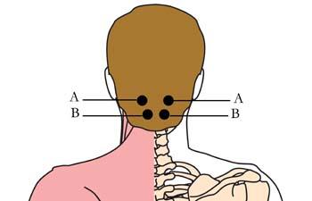 os-15-headache-migrane-cell-points1.jpg