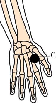 os-15-headache-migrane-cell-points2.jpg
