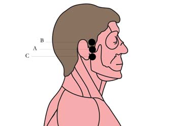 os-16-ear-pain-cell-points-.jpg