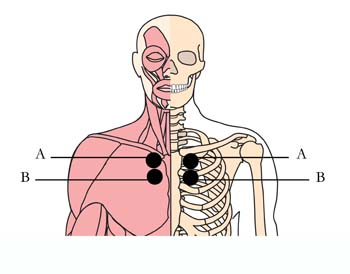 os-8-bronchial-asthma-cell-points.jpg