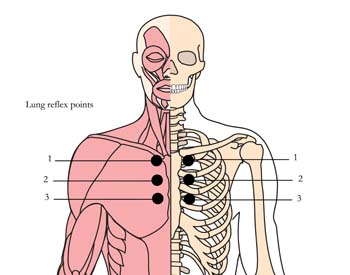 os-8-bronchial-asthma-tlc-points.jpg