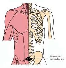 os-pro-prostate-tlc-points.jpg